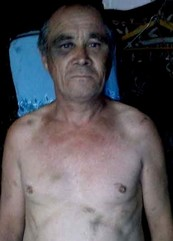Alexander Albrandt sustained bruises all over his body as a result of torture by police